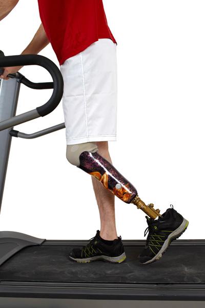 A man on a treadmill wearing a prosthetic leg.